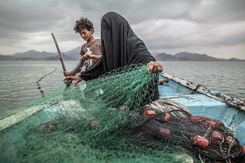 Yemen: Hunger, Another War Wound